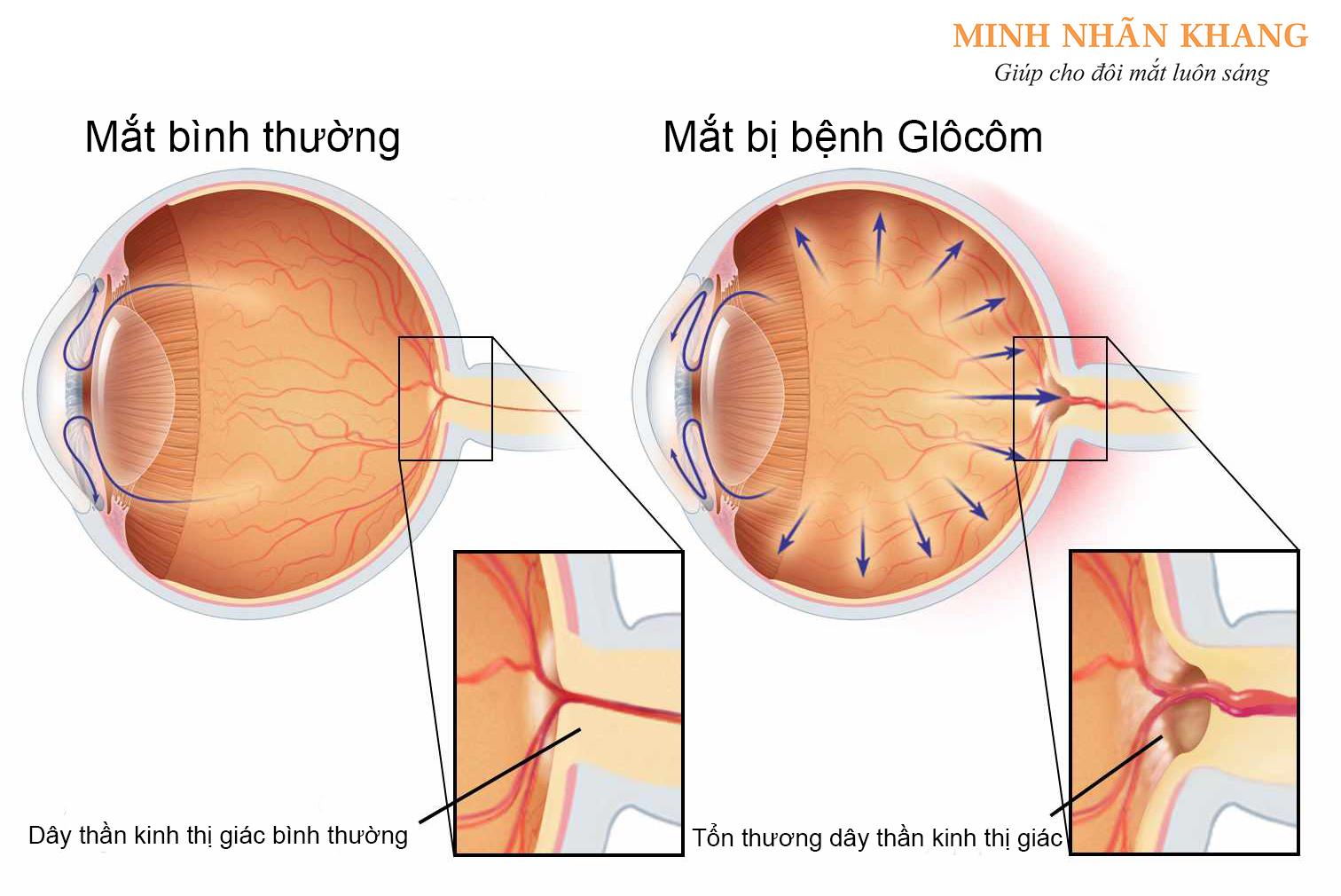 Glocom làm tổn thương dây thần kinh thị giác gây giảm thị lực ở người bệnh